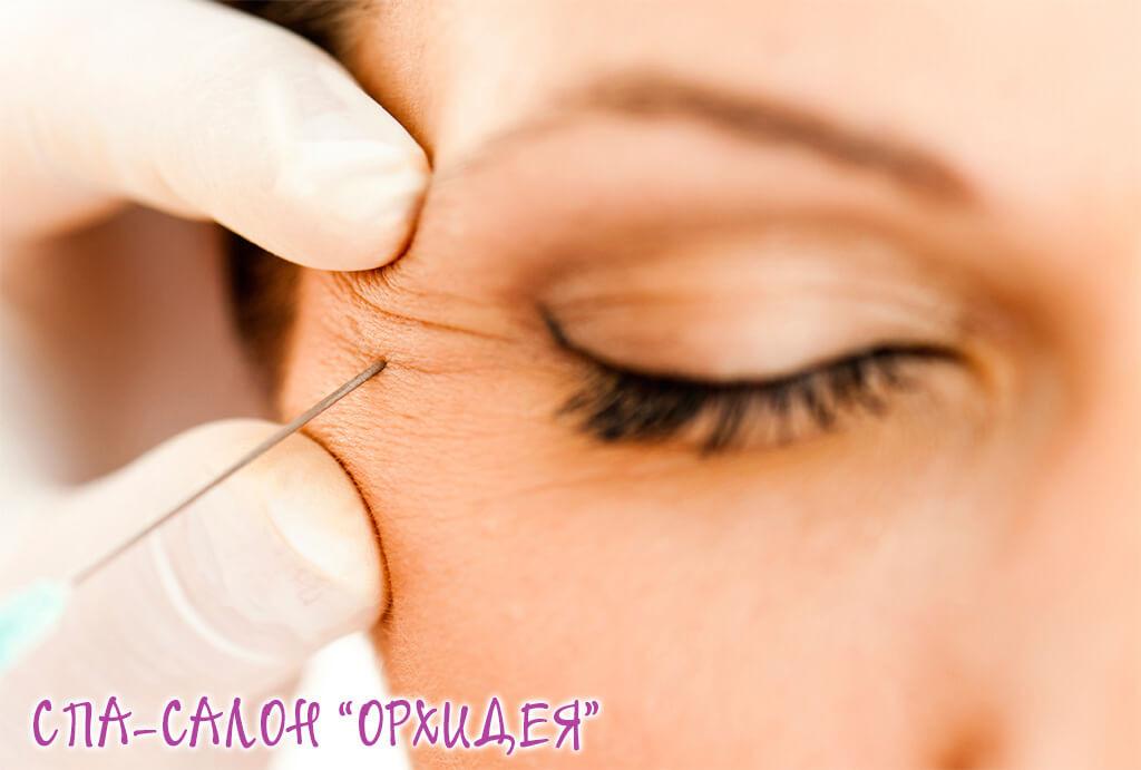 Ботулинический токсин в косметологии